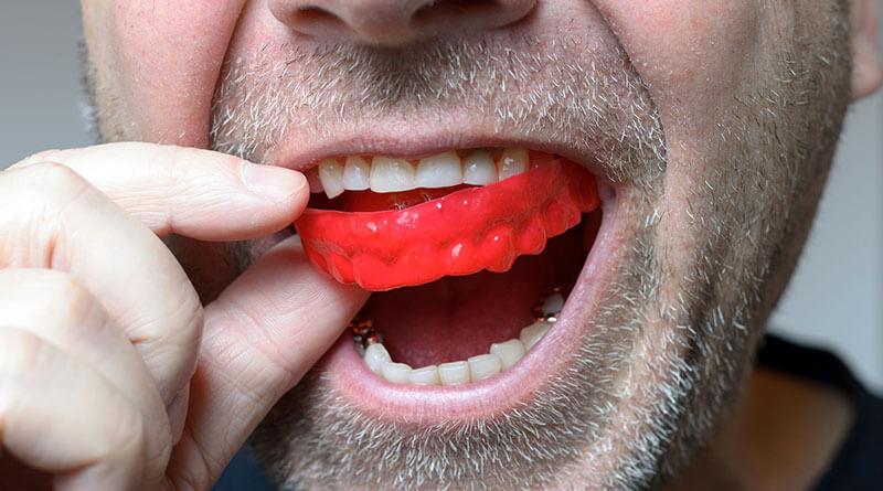felnőttkori fogszabályozás dentozófiai aktivátorral a fogak védelméért