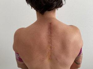 Ana Carrasco gerincműtét